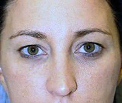eyelid-lift-blepharoplasty-plastic-surgery-beverly-hills-woman-before-front-dr-maan-kattash