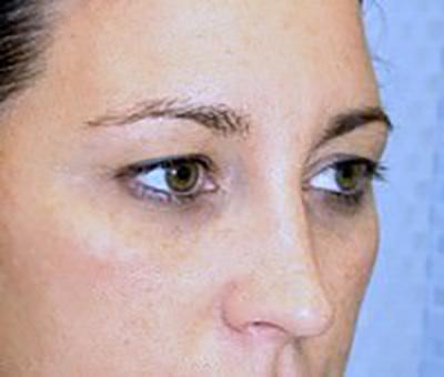 eyelid-lift-blepharoplasty-plastic-surgery-beverly-hills-woman-before-oblique-dr-maan-kattash