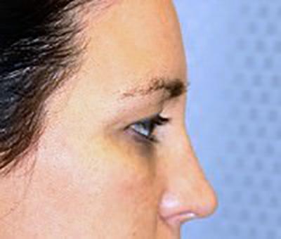 eyelid-lift-blepharoplasty-plastic-surgery-beverly-hills-woman-before-side-dr-maan-kattash