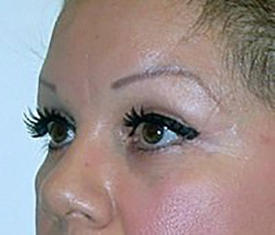 eyelid-lift-blepharoplasty-plastic-surgery-claremont-after-oblique-dr-maan-kattash