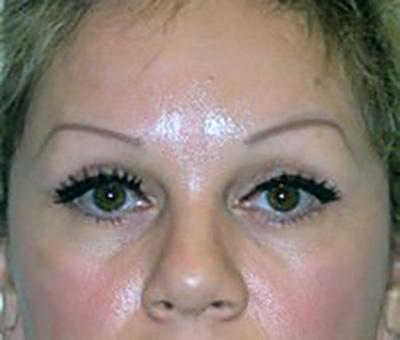 eyelid-lift-blepharoplasty-plastic-surgery-claremont-woman-after-front-dr-maan-kattash