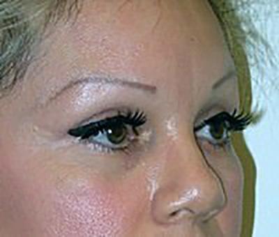 eyelid-lift-blepharoplasty-plastic-surgery-claremont-woman-after-side-dr-maan-kattash