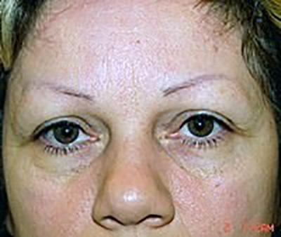 eyelid-lift-blepharoplasty-plastic-surgery-claremont-woman-before-front-dr-maan-kattash