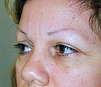 eyelid-lift-blepharoplasty-plastic-surgery-claremont-woman-before-oblique-dr-maan-kattash