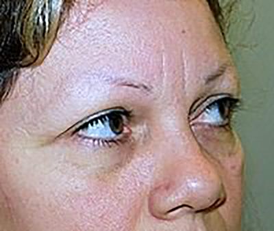eyelid-lift-blepharoplasty-plastic-surgery-claremont-woman-before-side-dr-maan-kattash