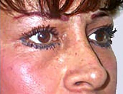 eyelid-lift-blepharoplasty-plastic-surgery-inland-empire-after-oblique-dr-maan-kattash-2