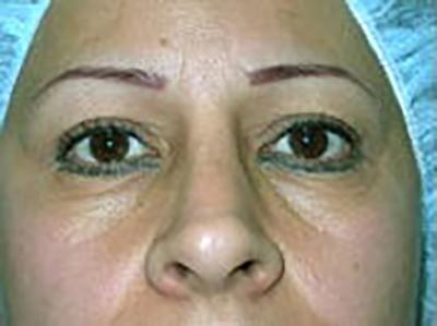eyelid-lift-blepharoplasty-plastic-surgery-inland-empire-woman-before-front-dr-maan-kattash