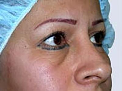 eyelid-lift-blepharoplasty-plastic-surgery-inland-empire-woman-before-oblique-dr-maan-kattash