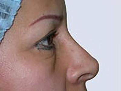 eyelid-lift-blepharoplasty-plastic-surgery-inland-empire-woman-before-side-dr-maan-kattash