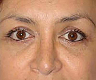 eyelid-lift-blepharoplasty-plastic-surgery-orange-county-woman-after-front-dr-maan-kattas