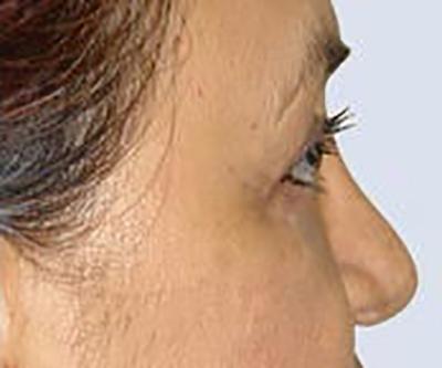 eyelid-lift-blepharoplasty-plastic-surgery-orange-county-woman-after-side-dr-maan-kattash