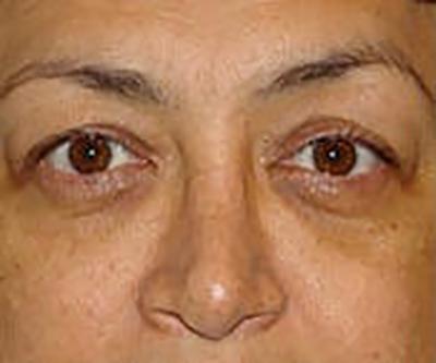 eyelid-lift-blepharoplasty-plastic-surgery-orange-county-woman-before-front-dr-maan-kattash