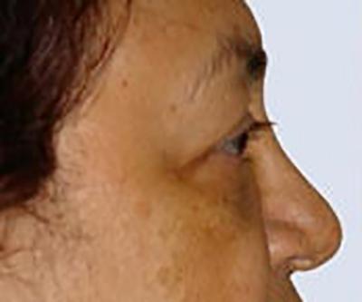 eyelid-lift-blepharoplasty-plastic-surgery-orange-county-woman-before-side-dr-maan-kattash