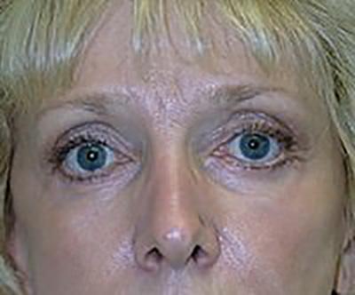 eyelid-lift-blepharoplasty-plastic-surgery-rancho-cucamonga-woman-after-front-dr-maan-kattash