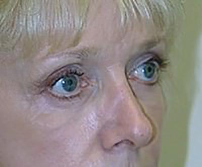eyelid-lift-blepharoplasty-plastic-surgery-rancho-cucamonga-woman-after-oblique-dr-maan-kattash