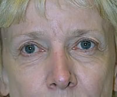 eyelid-lift-blepharoplasty-plastic-surgery-rancho-cucamonga-woman-before-front-dr-maan-kattash