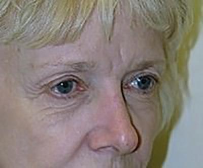 eyelid-lift-blepharoplasty-plastic-surgery-rancho-cucamonga-woman-before-oblique-dr-maan-kattash