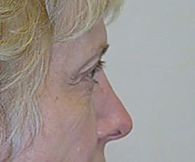eyelid-lift-blepharoplasty-plastic-surgery-rancho-cucamonga-woman-before-side-dr-maan-kattash