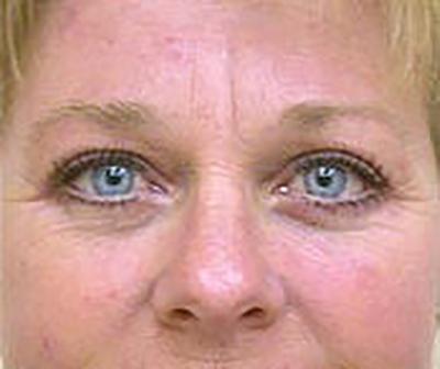 eyelid-lift-blepharoplasty-plastic-surgery-tustin-woman-after-front-dr-maan-kattash