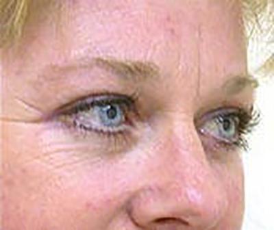 eyelid-lift-blepharoplasty-plastic-surgery-tustin-woman-after-oblique-dr-maan-kattash
