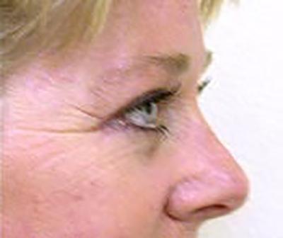eyelid-lift-blepharoplasty-plastic-surgery-tustin-woman-after-side-dr-maan-kattash