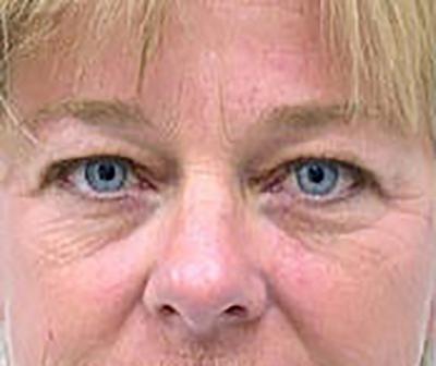 eyelid-lift-blepharoplasty-plastic-surgery-tustin-woman-before-front-dr-maan-kattash