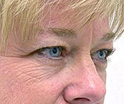 eyelid-lift-blepharoplasty-plastic-surgery-tustin-woman-before-oblique-dr-maan-kattash