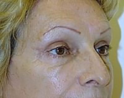 eyelid-lift-blepharoplasty-plastic-surgery-upland-after-oblique-dr-maan-kattash