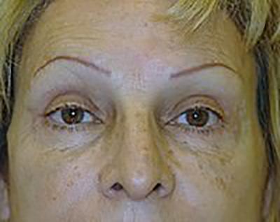 eyelid-lift-blepharoplasty-plastic-surgery-upland-woman-after-front-dr-maan-kattash