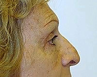 eyelid-lift-blepharoplasty-plastic-surgery-upland-woman-after-side-dr-maan-kattash