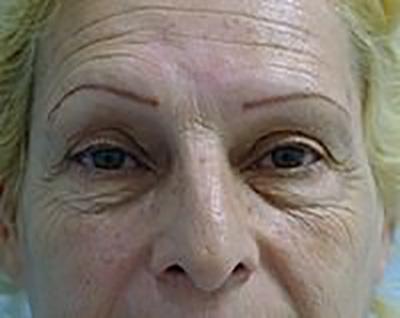 eyelid-lift-blepharoplasty-plastic-surgery-upland-woman-before-front-dr-maan-kattash