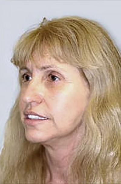 facelift-plastic-surgery-irvine-woman-after-oblique-dr-maan-kattash