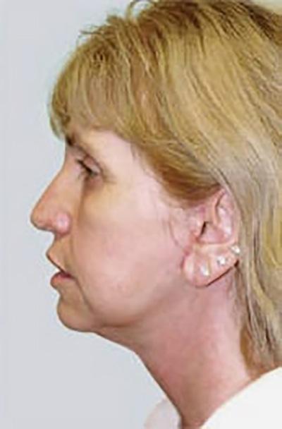 facelift-plastic-surgery-irvine-woman-after-side-dr-maan-kattash