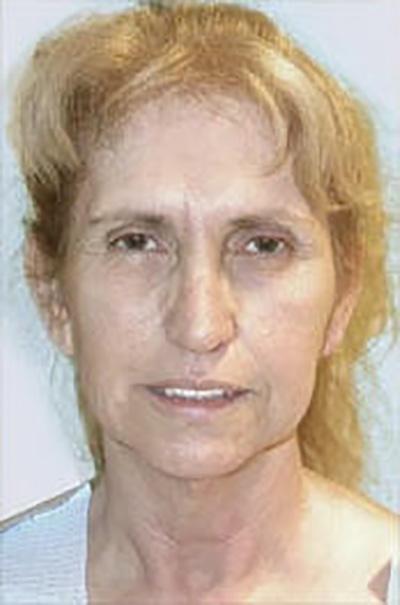 facelift-plastic-surgery-irvine-woman-before-front-dr-maan-kattash
