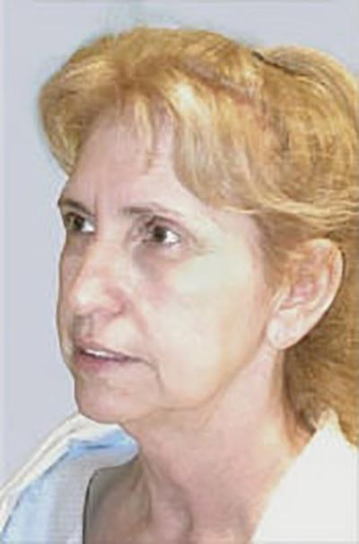 facelift-plastic-surgery-irvine-woman-before-oblique-dr-maan-kattash