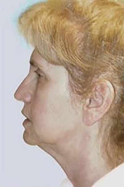 facelift-plastic-surgery-irvine-woman-before-side-dr-maan-kattash
