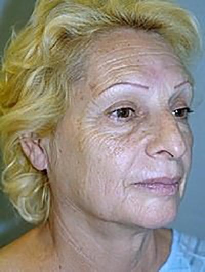 facelift-plastic-surgery-los-angeles-woman-before-oblique-dr-maan-kattash