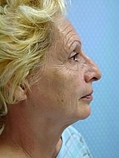facelift-plastic-surgery-los-angeles-woman-before-side-dr-maan-kattash