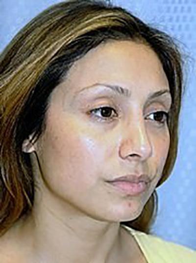 rhinoplasty-plastic-surgery-nose-job-claremont-woman-after-oblique-dr-maan-kattash2