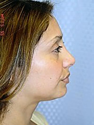rhinoplasty-plastic-surgery-nose-job-claremont-woman-after-side-dr-maan-kattash2