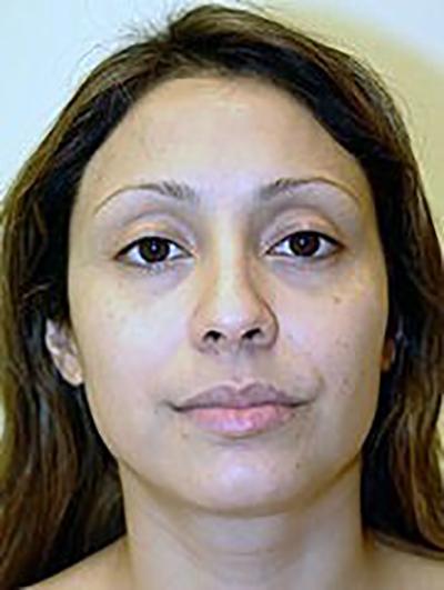 rhinoplasty-plastic-surgery-nose-job-claremont-woman-before-front-dr-maan-kattash2
