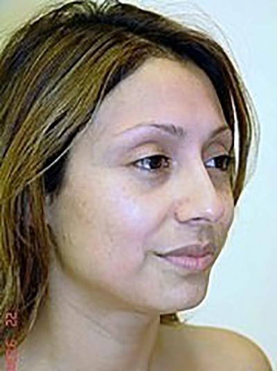rhinoplasty-plastic-surgery-nose-job-claremont-woman-before-oblique-dr-maan-kattash2