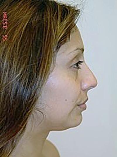 rhinoplasty-plastic-surgery-nose-job-claremont-woman-before-side-dr-maan-kattash2