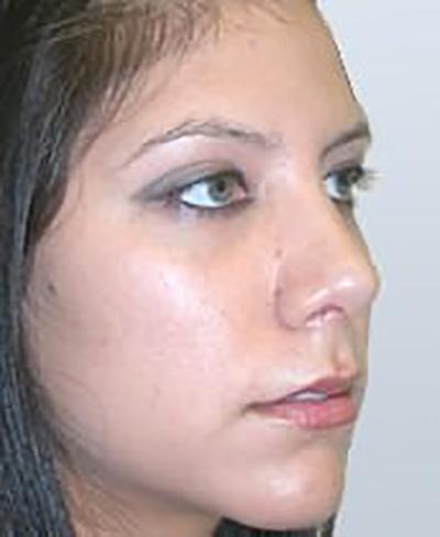 rhinoplasty-plastic-surgery-nose-job-tustin-woman-after-oblique-dr-maan-kattash2