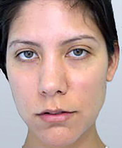 rhinoplasty-plastic-surgery-nose-job-tustin-woman-before-front-dr-maan-kattash2