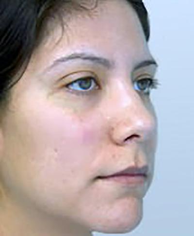 rhinoplasty-plastic-surgery-nose-job-tustin-woman-before-oblique-dr-maan-kattash2