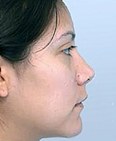 rhinoplasty-plastic-surgery-nose-job-tustin-woman-before-side-dr-maan-kattash2