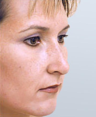rhinoplasty-surgery-nose-job-los-beverly-hills-after-oblique-dr-maan-kattash2