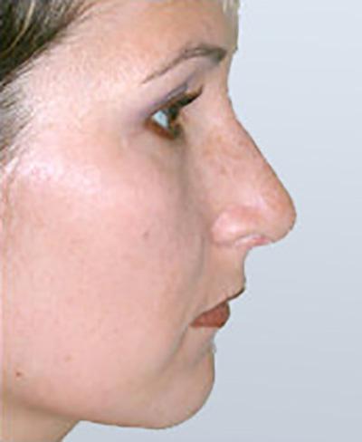 rhinoplasty-surgery-nose-job-los-beverly-hills-after-side-dr-maan-kattash2