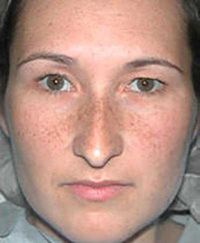 rhinoplasty-surgery-nose-job-los-beverly-hills-before-front-dr-maan-kattash2